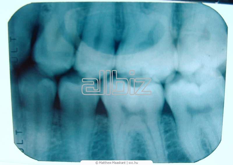 Заказать Лечение зубных каналов