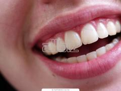 Изготовление и установка зубных коронок